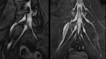 NerveVIEW imaging of right L5 radiculopathy